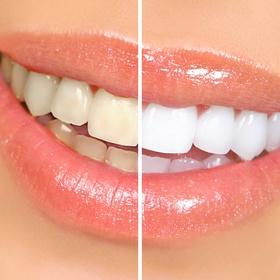 Scaling my teeth - Bucket List Ideas