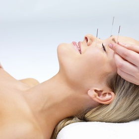 Try Acupuncture - Bucket List Ideas
