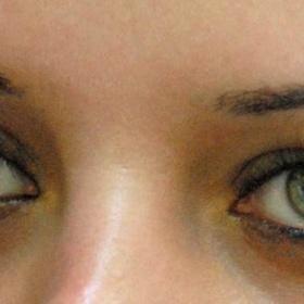 Have LASIK surgery on my I eyes - Bucket List Ideas