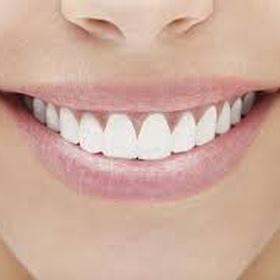 Fixed Teeth situations - Bucket List Ideas