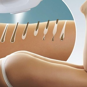 Laser therapy and become hairfree - Bucket List Ideas